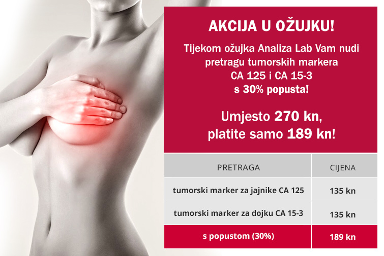 analiza_lab_ožujak_newsletter.jpg